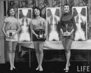1950s Chiropractic Beauty Contest